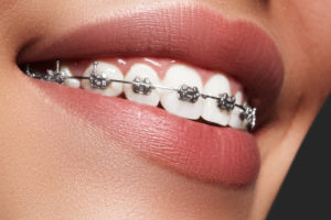 orthodontics- braces